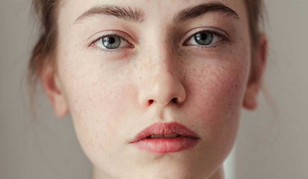 Πανάδες στο πρόσωπο: Μπορούν να εξαφανιστούν;