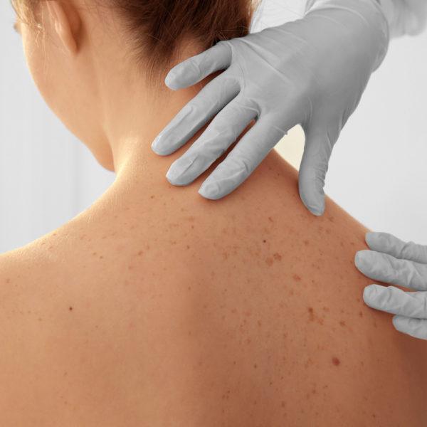 Κύστεις στο δέρμα: Τι είναι και πώς αντιμετωπίζονται