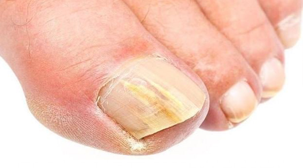 Μυκητίαση στα νύχια: Τι είναι, τα συμπτώματα και η θεραπεία