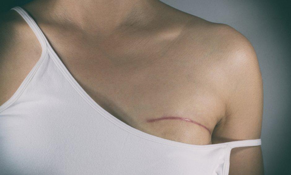 Ιατρικό τατουάζ: Τι είναι και πότε συστήνεται