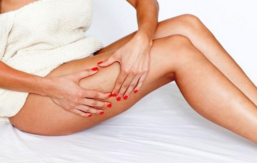 Ευρυαγγείες στα πόδια: Τι είναι και πώς θα απαλλαγείτε οριστικά