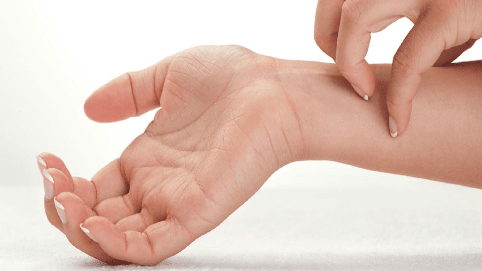 Δερματίτιδα στα χέρια